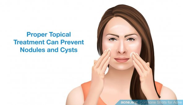 Proper Topical Treatment Can Prevent Nodules and Cysts