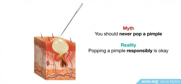 Myth: you should never pop a pimple