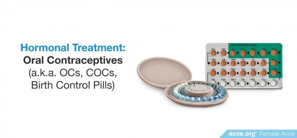 Hormonal Acne Treatment: Oral Contraceptives
