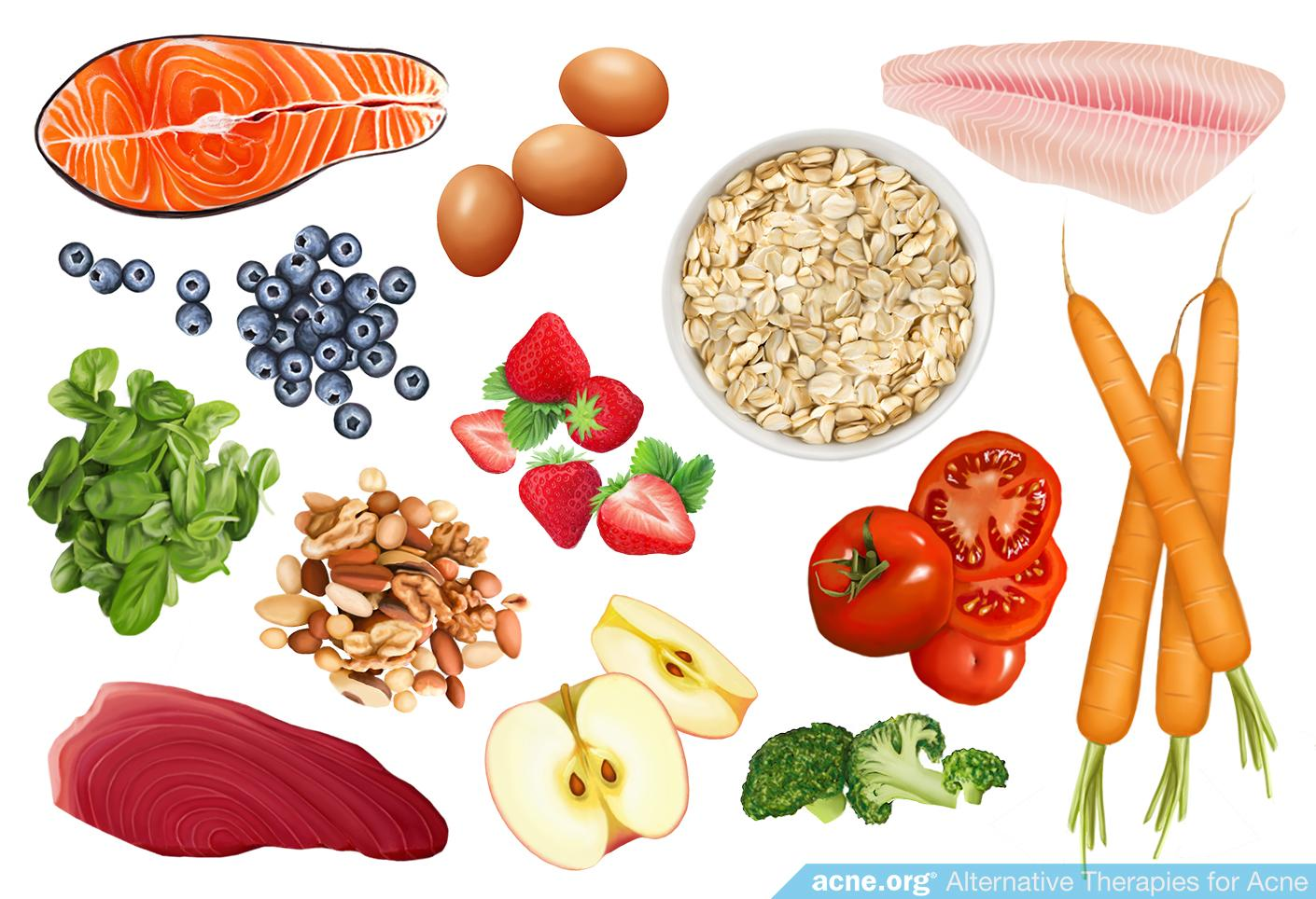Alternative Therapies for Acne: Diet