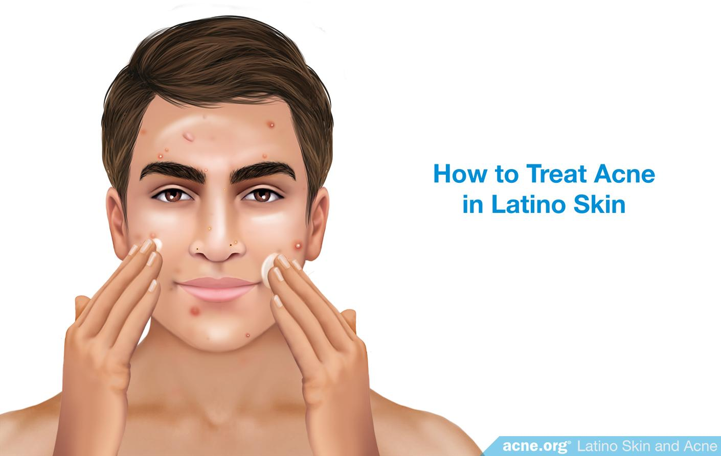 How to Treat Acne in Latino Skin