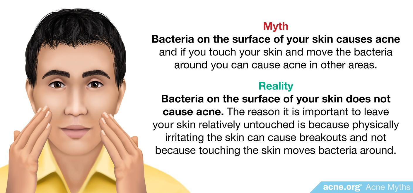 Myth: bacteria on the surface of your skin causes acne