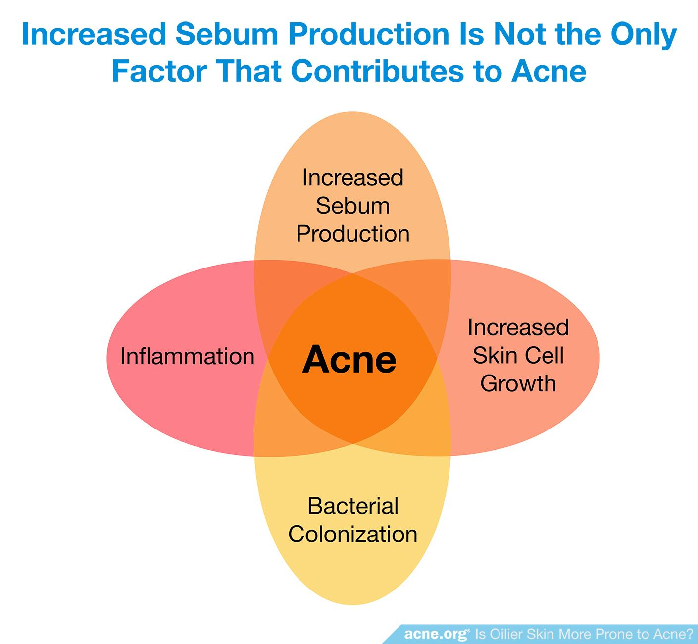 Increased Sebum Production Is Not the Only Factor that Contributes to Acne