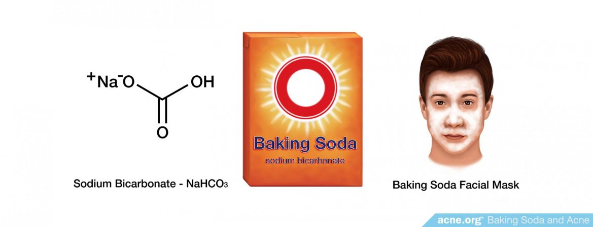 Baking Soda and Acne