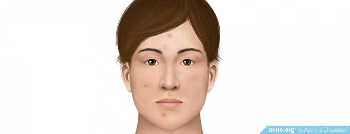 Is Acne a Disease?