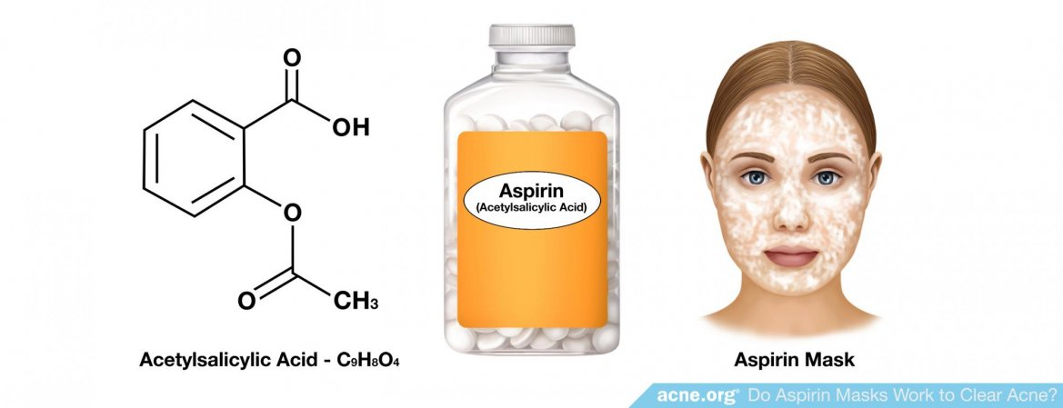 Do Aspirin Masks or Other Forms of Topical Aspirin Work to Clear Acne?