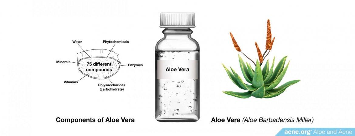Can Aloe Help Acne?