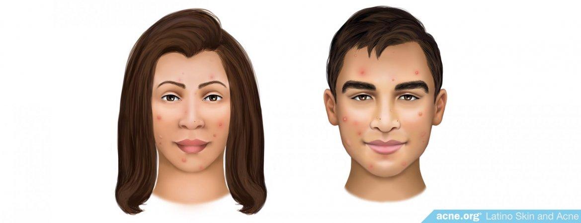 Latino Skin and Acne