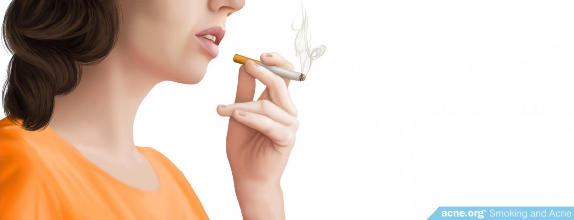 Does Smoking Cigarettes Cause Acne?