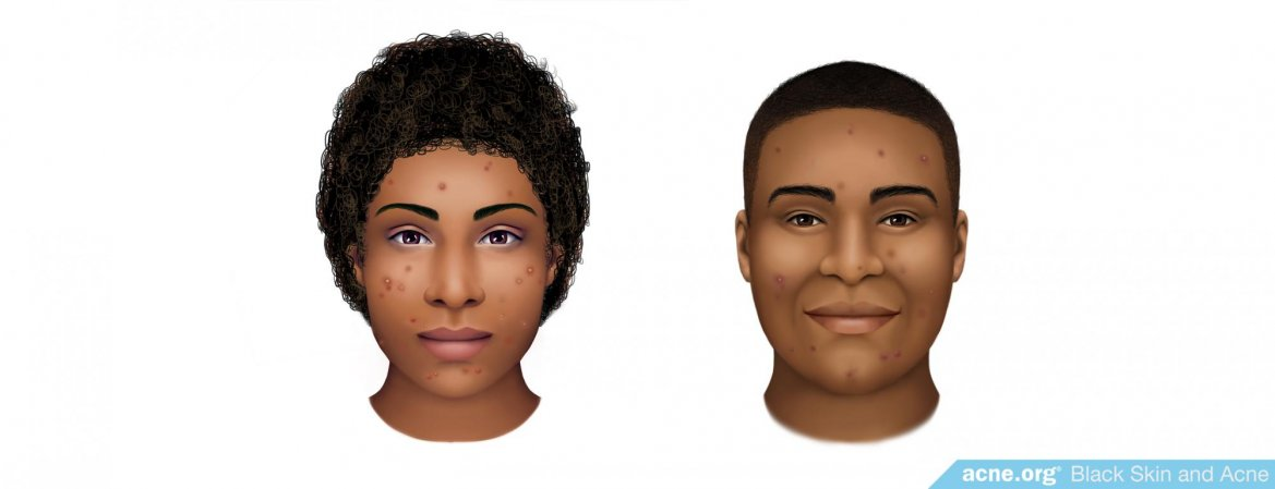 Black Skin and Acne