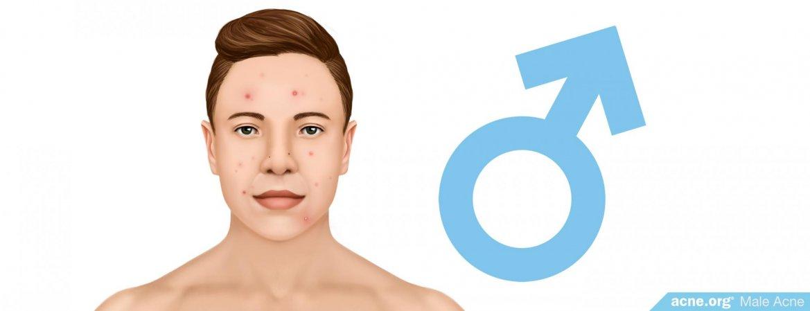 Male Acne