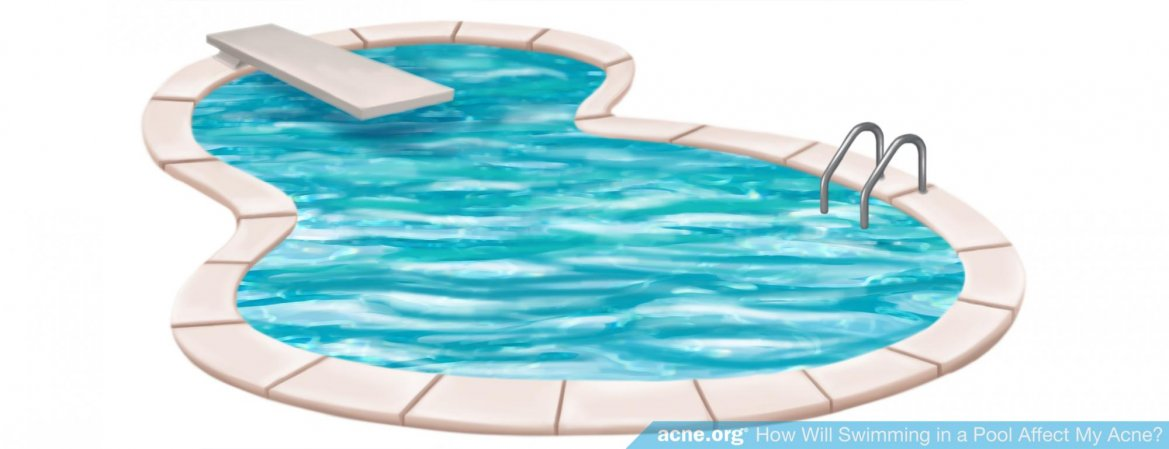 How Will Swimming in a Pool Affect My Acne?