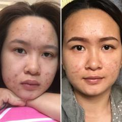 After 6 months using acne.org