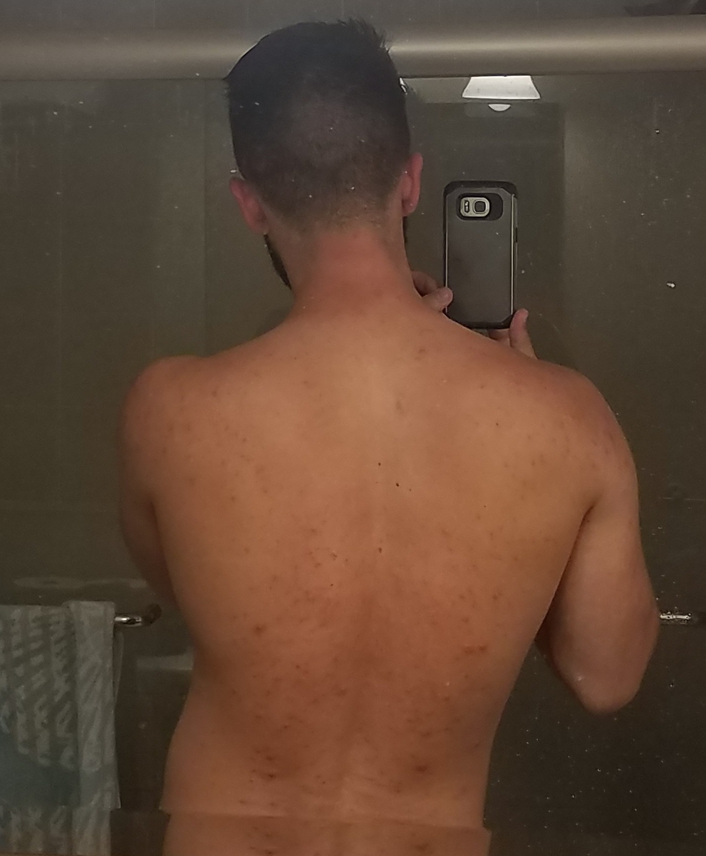 CURED!! 10+ years of severe nodular cystic body acne gone in