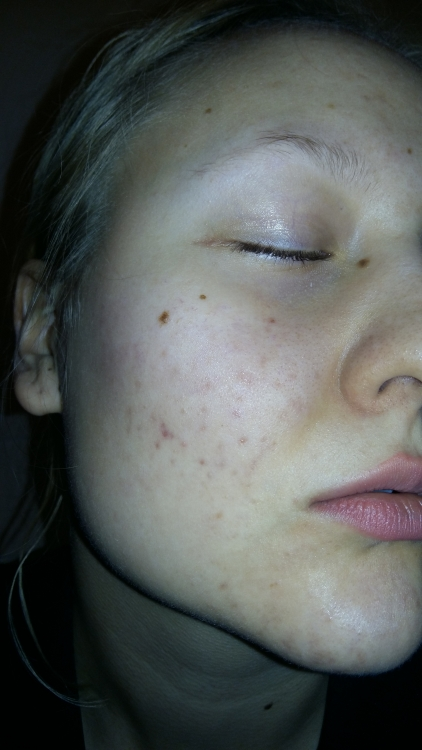 how to get rid of red pimple marks