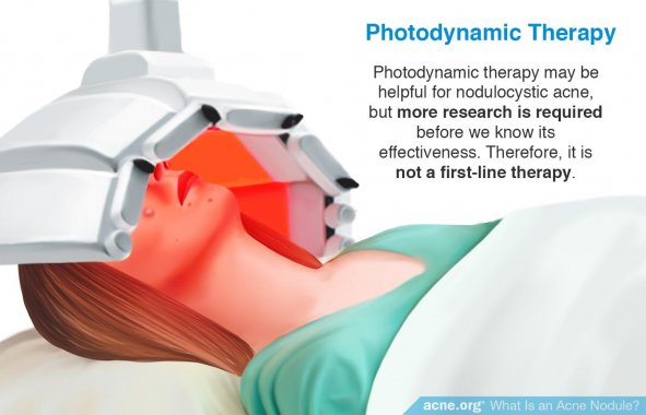 Photodynamic Therapy (PDT) - Acne.org
