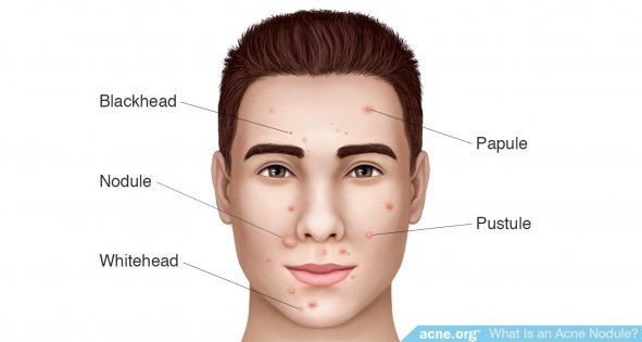 Types of Acne - Acne.org