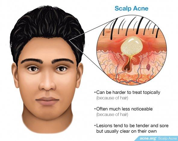 Scalp Acne - Acne.org