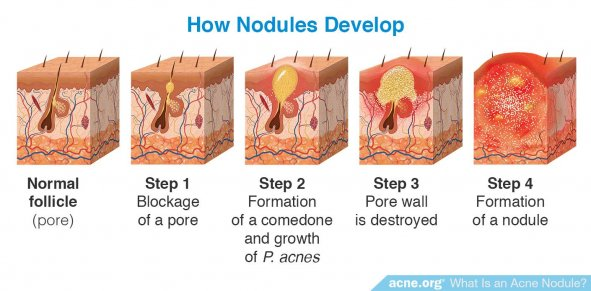 How Nodules Develop - Acne.org