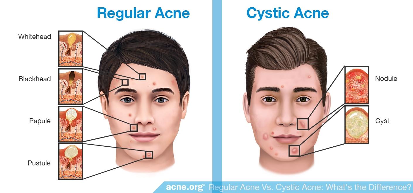 Regular Acne vs. Cystic Acne