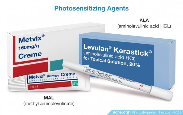 Photosensitizing Agents - Acne.org