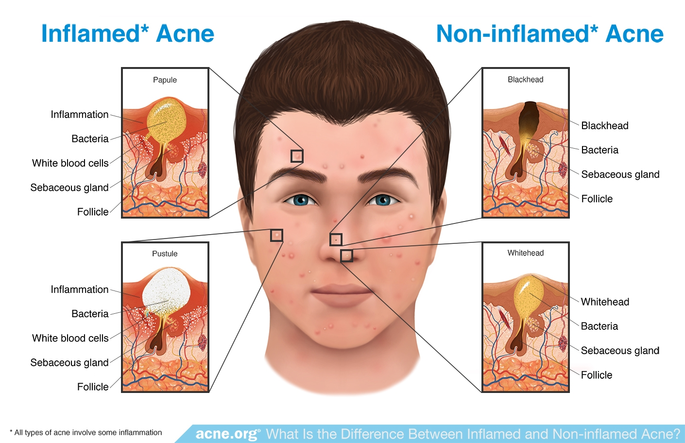 Inflamed Acne vs. Non-inflamed Acne