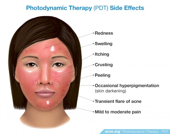 Photodynamic Therapy (PDT) Side Effects - Acne.org