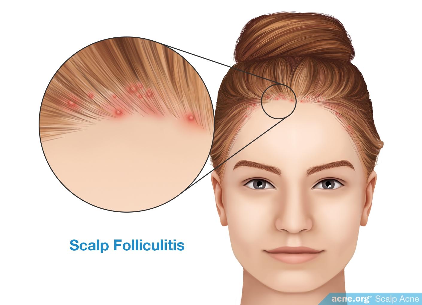 Scalp Folliculitis - Acne.org