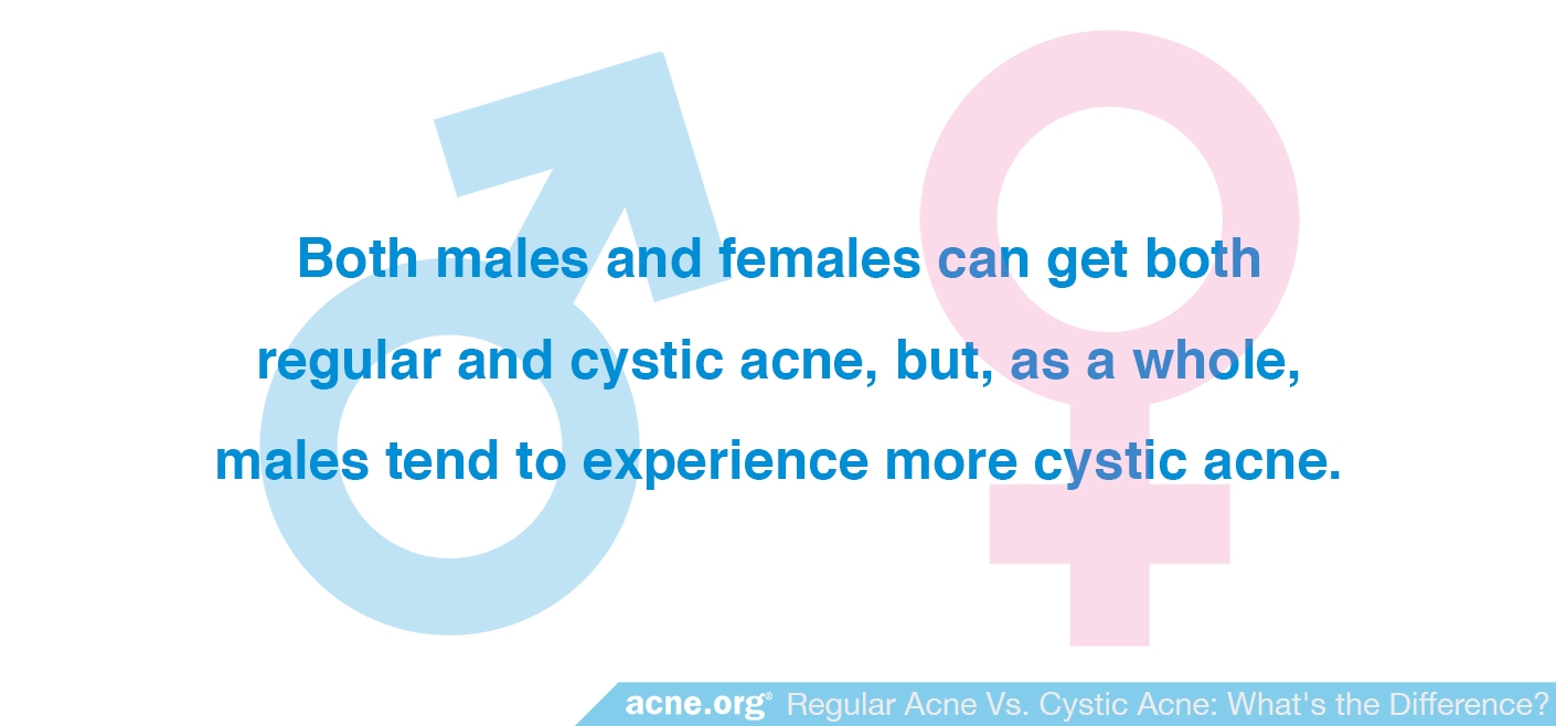 Both Males and Females Can Get Cystic Acne
