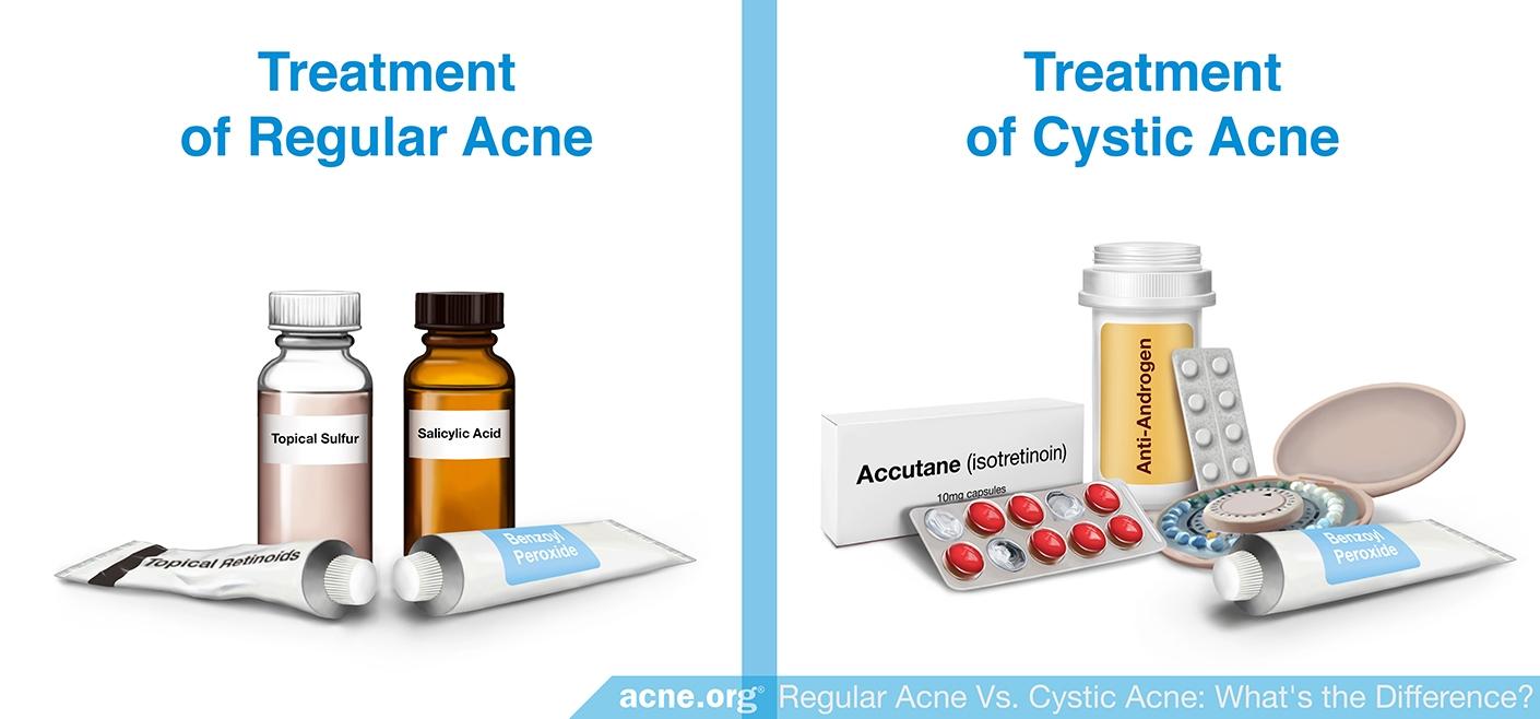 Treatment of Regular Acne vs. Treatment of Cystic Acne