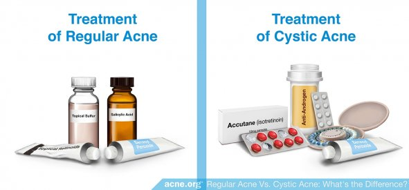 Treatment of Regular Acne vs. Treatment of Cystic Acne