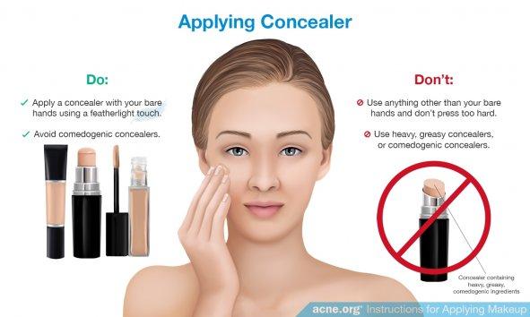 Applying Concealer to Acne-prone Skin