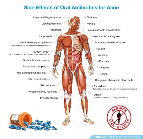 Side Effects of Oral Antibiotics for Acne - Acne.org