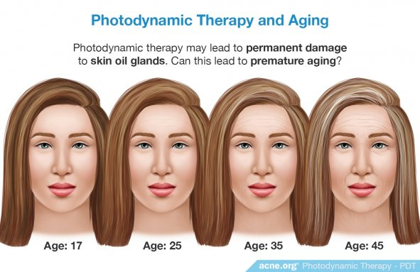 Photodynamic Therapy and Aging - Acne.org