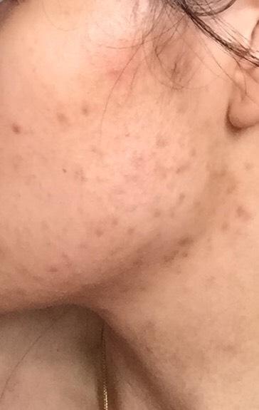 12 weeks (left side)