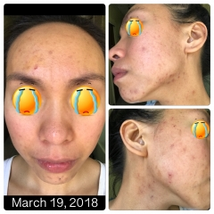 PCOS ACNE Battle