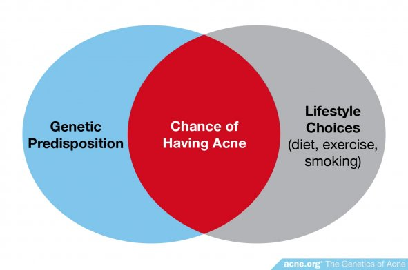 Genetic Predisposition and Lifestyle Choices Influence Acne Development