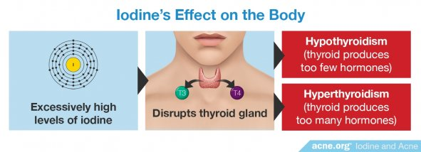 Iodine's Effect on the Body