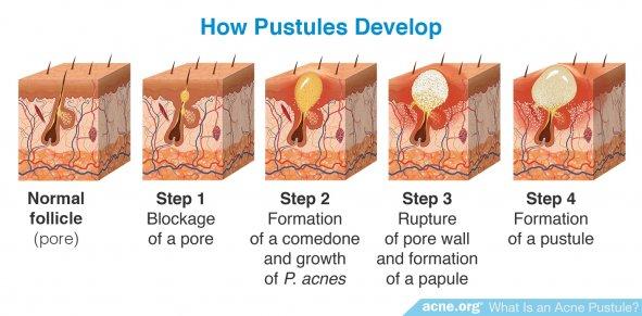 How Pustules Develop