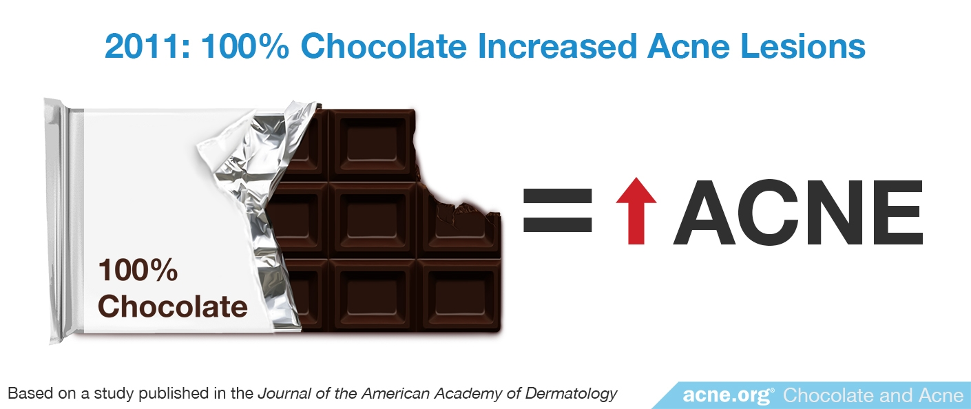 2011 Study: 100% Chocolate Increased Acne Lesions
