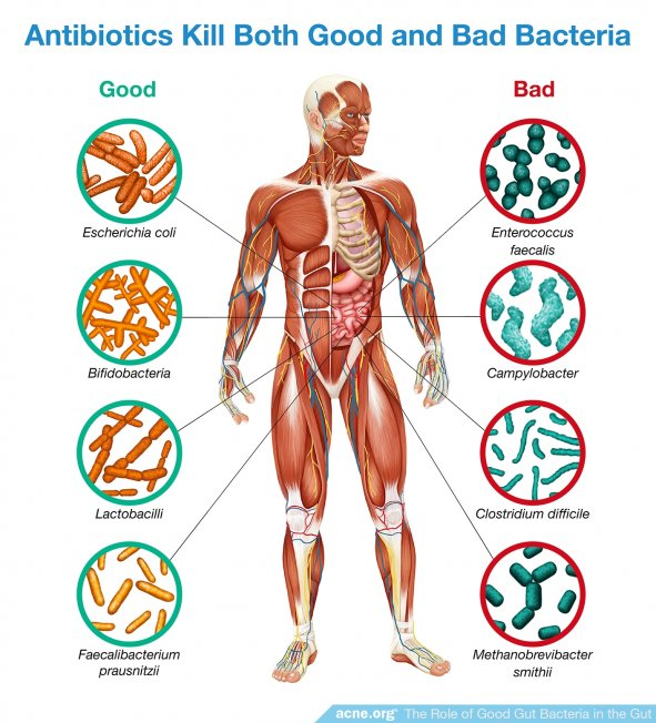 Antibiotics Kill Both Good and Bad Bacteria