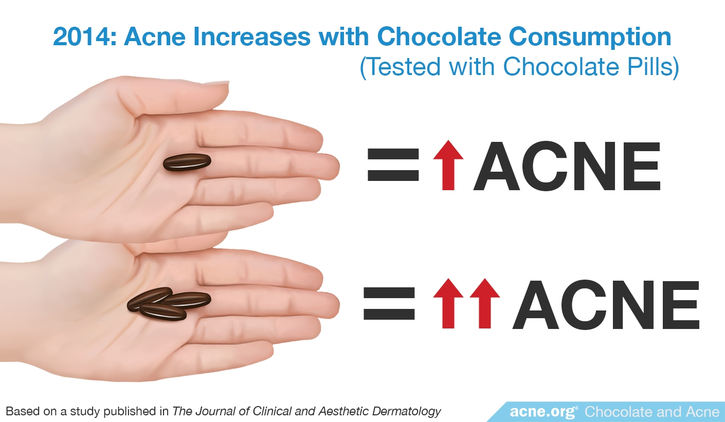 2014 Study: Acne Increases with Chocolate Consumption