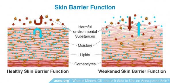 Skin Barrier Function: Weakened Barrier Function vs. Healthy