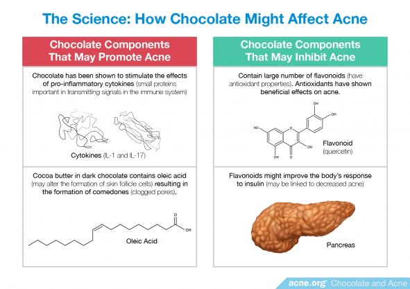 The Science: How Chocolate Might Affect Acne