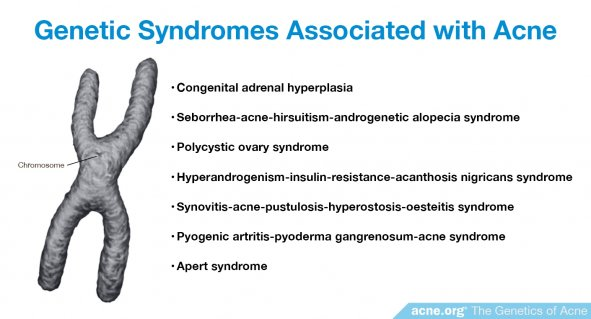Genetic Syndromes Associated with Acne