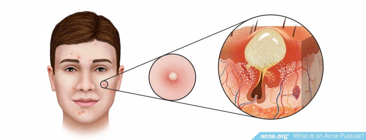 What Is an Acne Pustule?