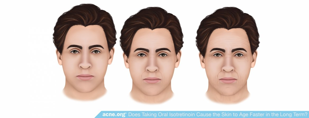 Does Taking Oral Isotretinoin Cause the Skin to Age Faster in the Long Term?