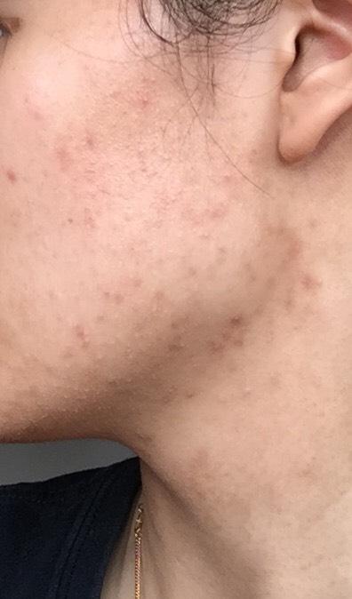 16 weeks (left side)