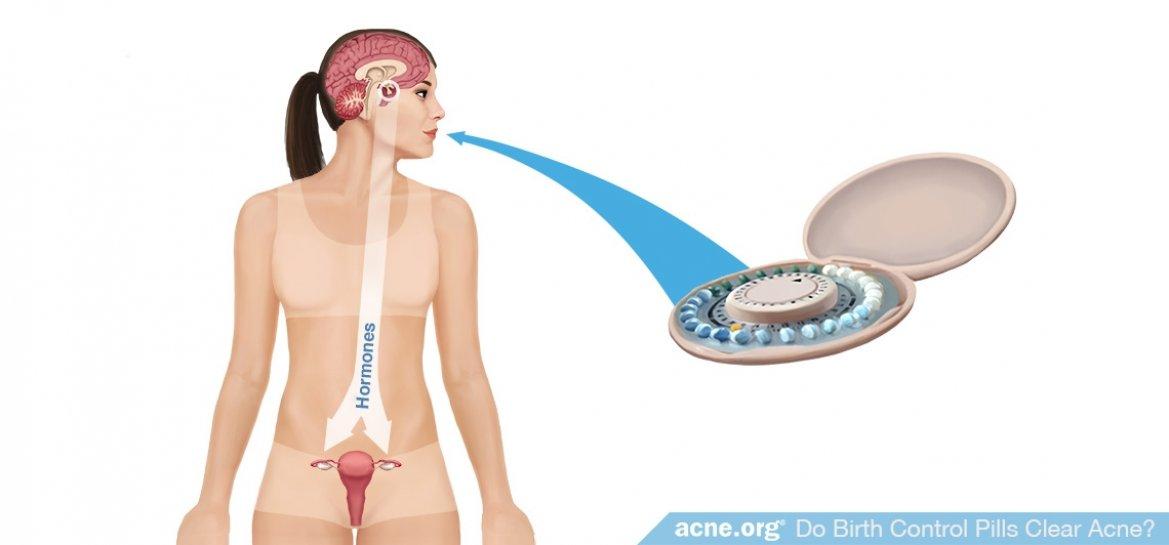 Do Birth Control Pills Clear Acne?