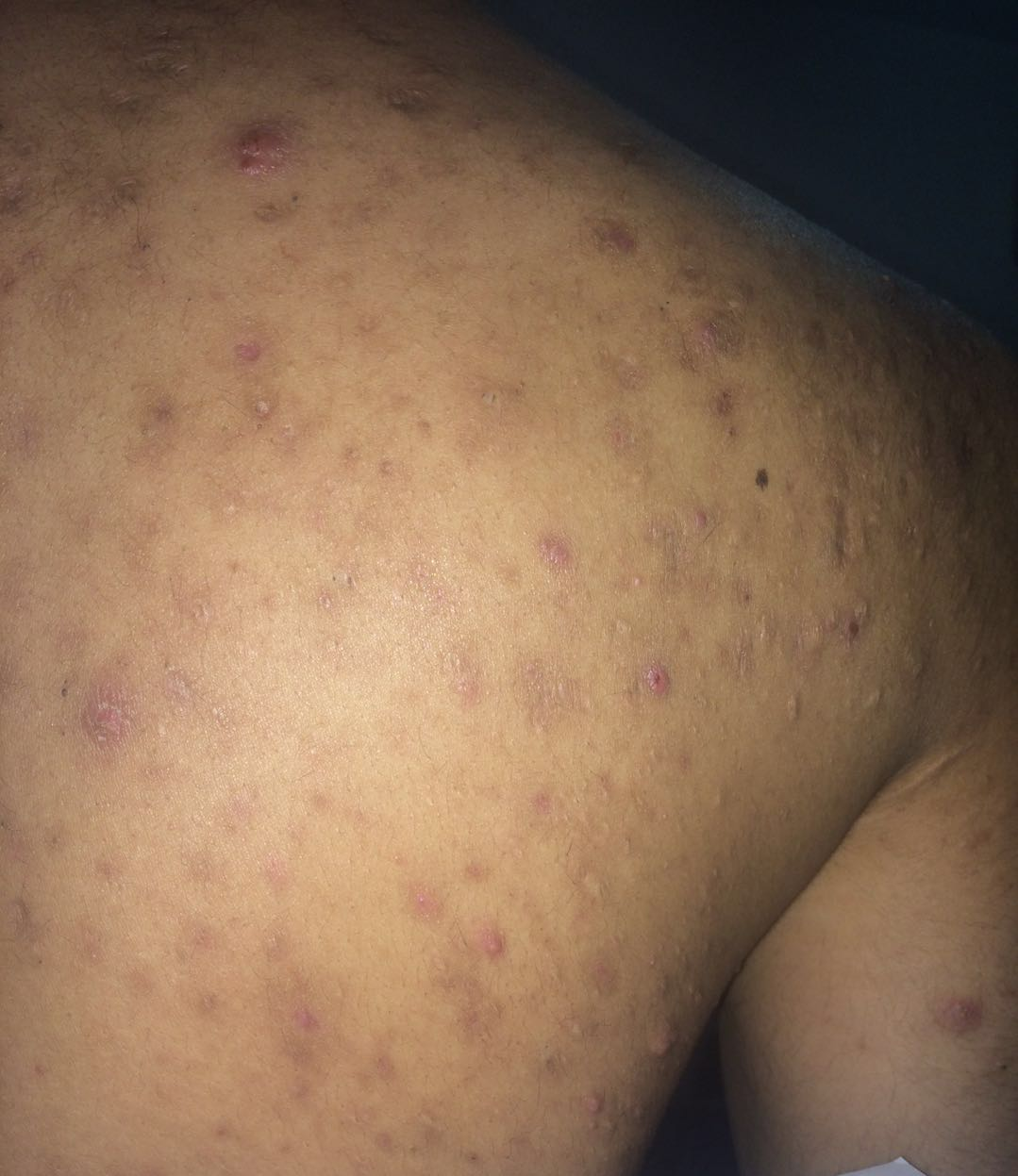 Severe Facial And Back Acne Relapsing After Medication 4 5